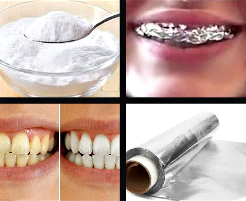 تبييض الاسنان بالبيت