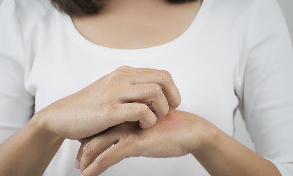 مرض الجرب أنواعه وطرق الحماية من التقاط العدوى مجلة سيدتي