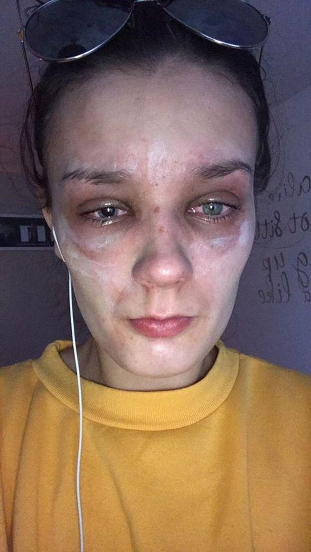 تعرضت لحروق في وجهها
