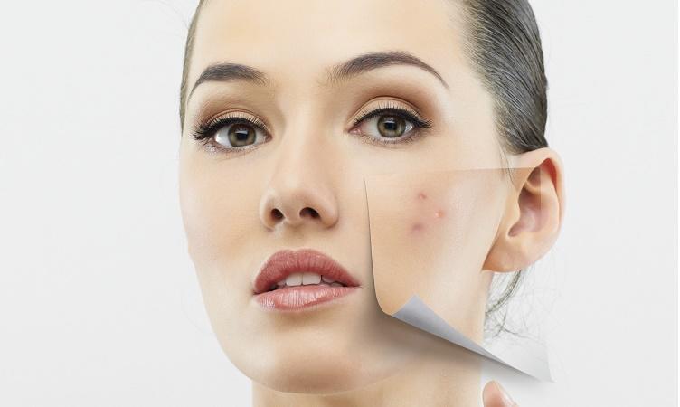 لا تهملي صحة بشرتك