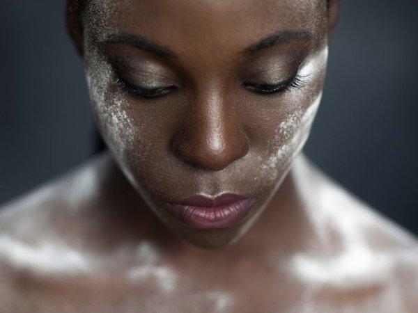 حساسية البشرة بعد إزالة الشعر