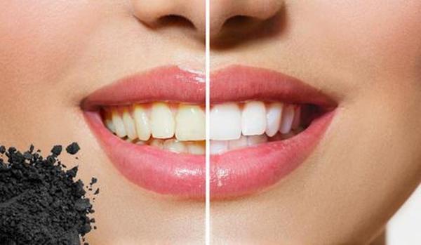 الفحم المنشط لن يغير لون الحشوات أو القشرة الخارجية للأسنان أو التيجان