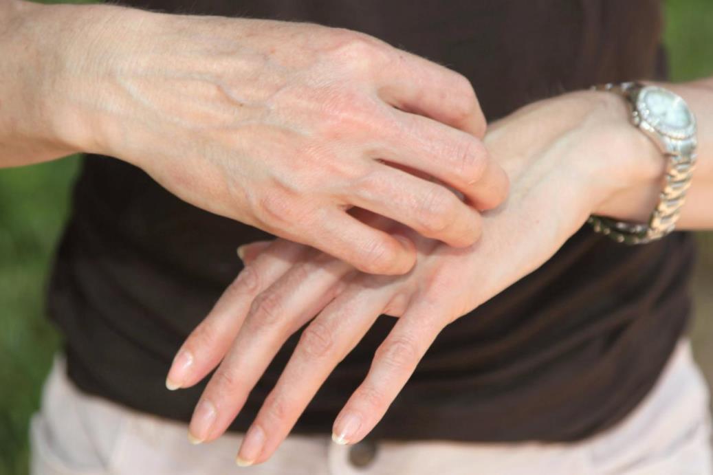 أوراق شجرة النيم تشفي الجروح وتقضي على الالتهابات الجلدية