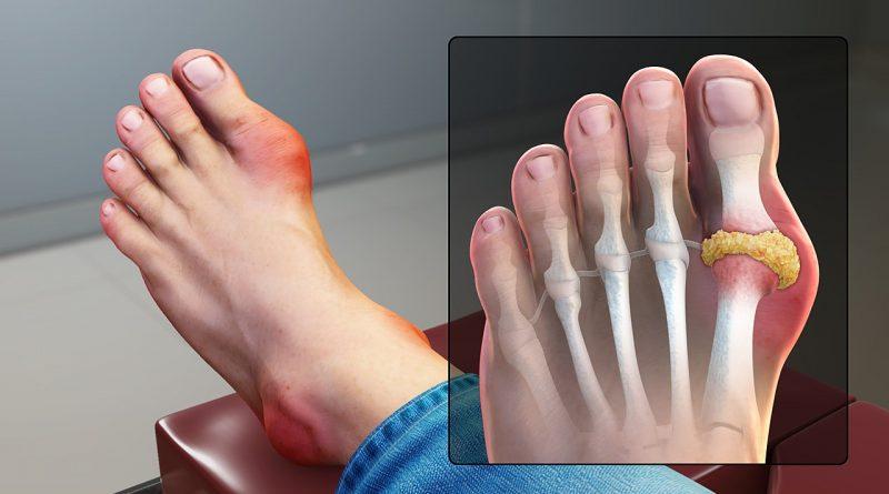 الألم في المفصل الكبير في إصبع القدم الكبير من أعراض داء النقرس