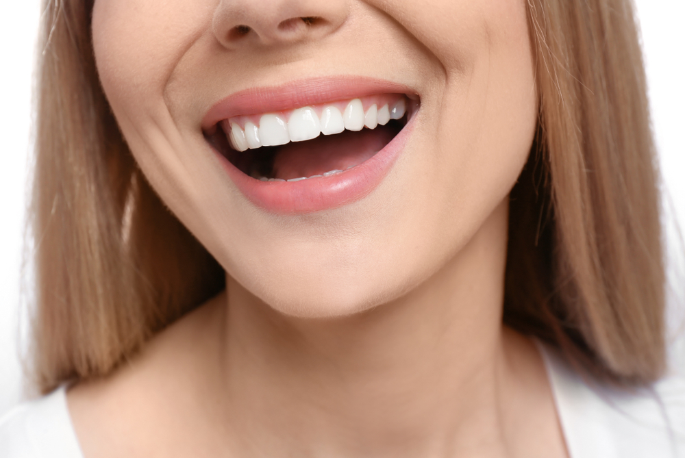 إجراء الابتسامة الهوليوودية يدوم نحو 7 سنوات