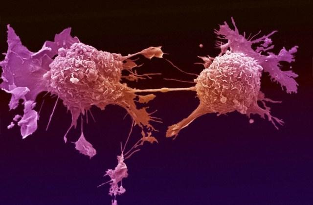 الملوثات العضوية تتخزن داخل الأنسجة الدهنية للجسم