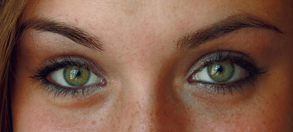 العيون الخضراء والزرقاء والعسلية أقل عرضة للإصابة بالبهاق
