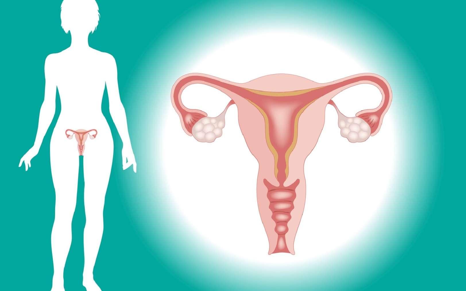 التهاب عنق الرحم من أمراض الرحم الشائعة