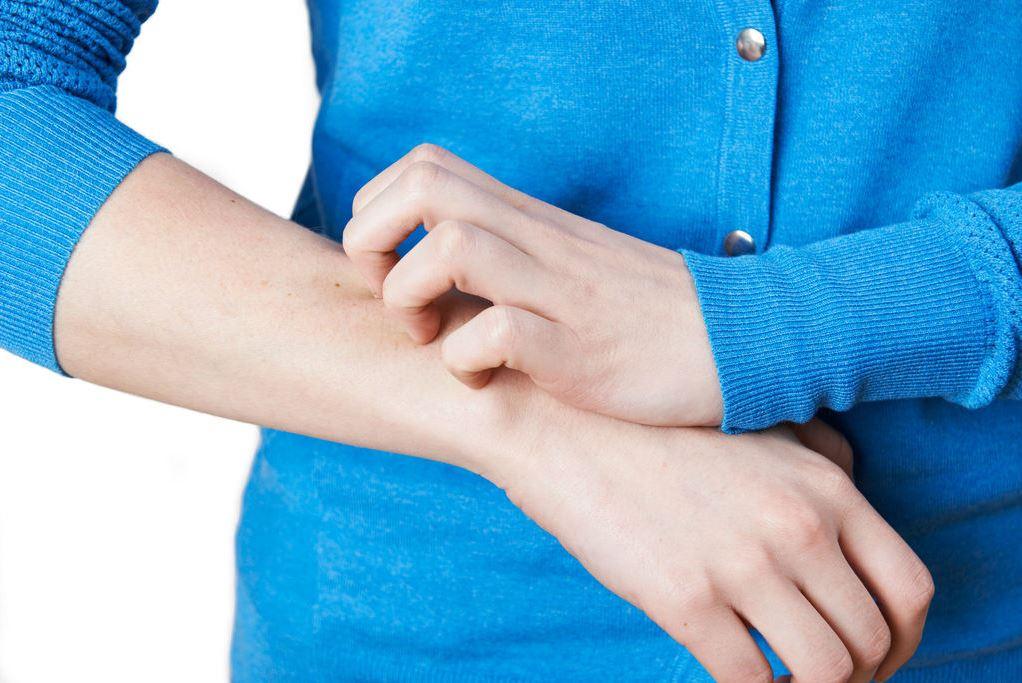 الأكزيما من الأمراض الجلدية الشائعة في فصل الصيف
