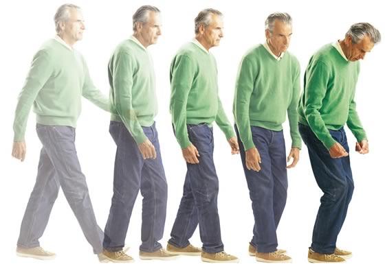 تطور وضعية المشي لدى مرضى باركنسون