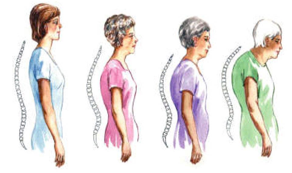 بعض العوامل تؤدي إلى الإصابة بترقق العظام.. تجنّبيها