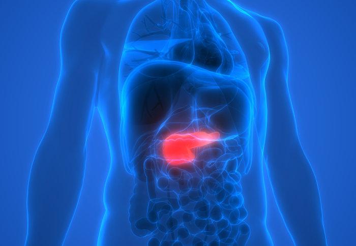 عقار جديد لمرضى سرطان البنكرياس