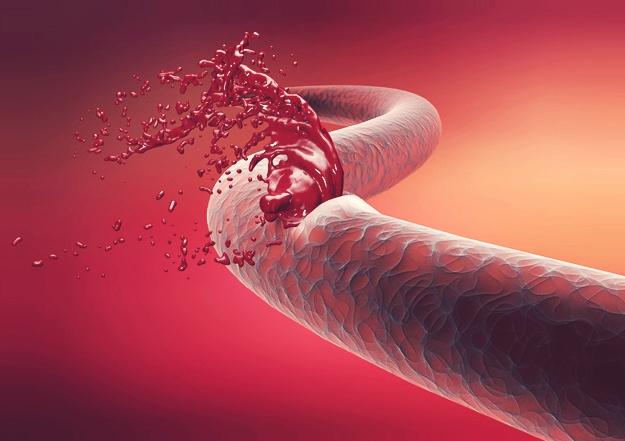 النزف الدموي الذي يدوم طويلاً أبرز أعراض الهيموفيليا