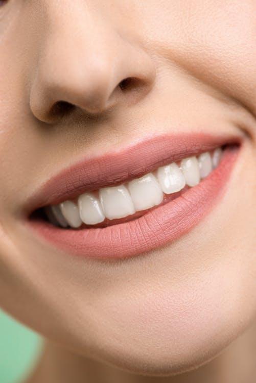 تعليمات وخلطات تبييض الأسنان