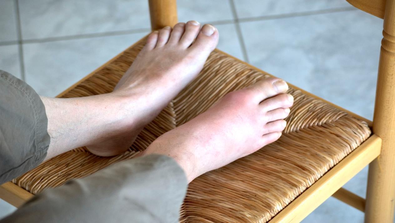 تورم في مفصل القدم الكبير