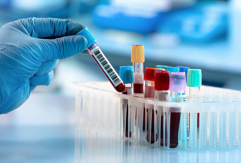 فحص الكولسترول في الدم