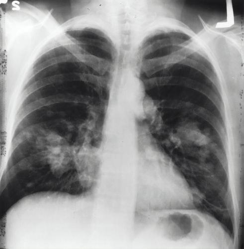 أمراض الرئة