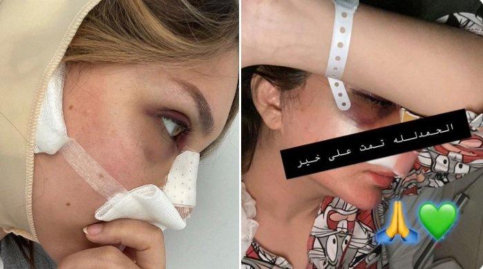 شيماء علي بعد الجراحة