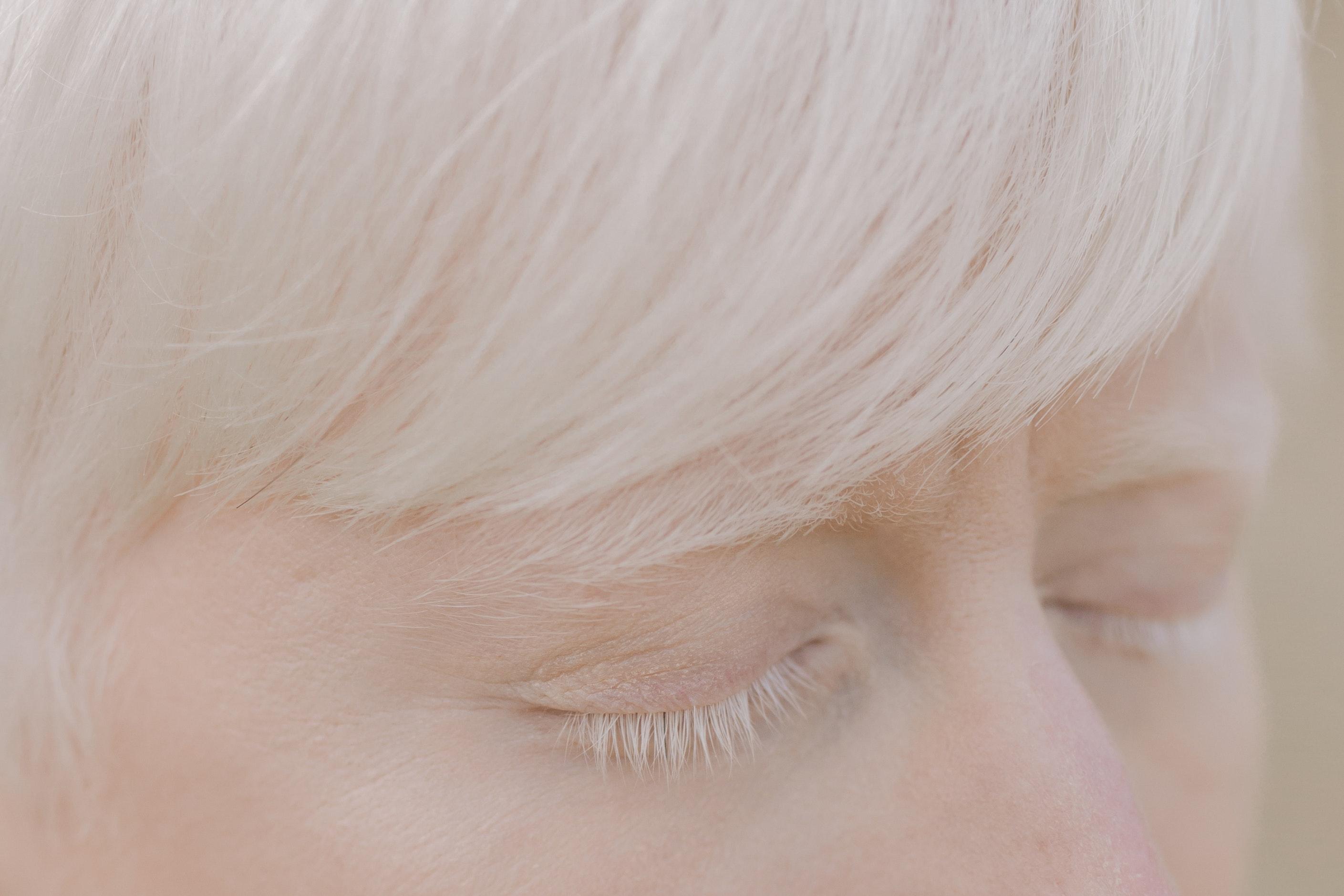 مرضى المهق يعانون من ضعف الرؤية