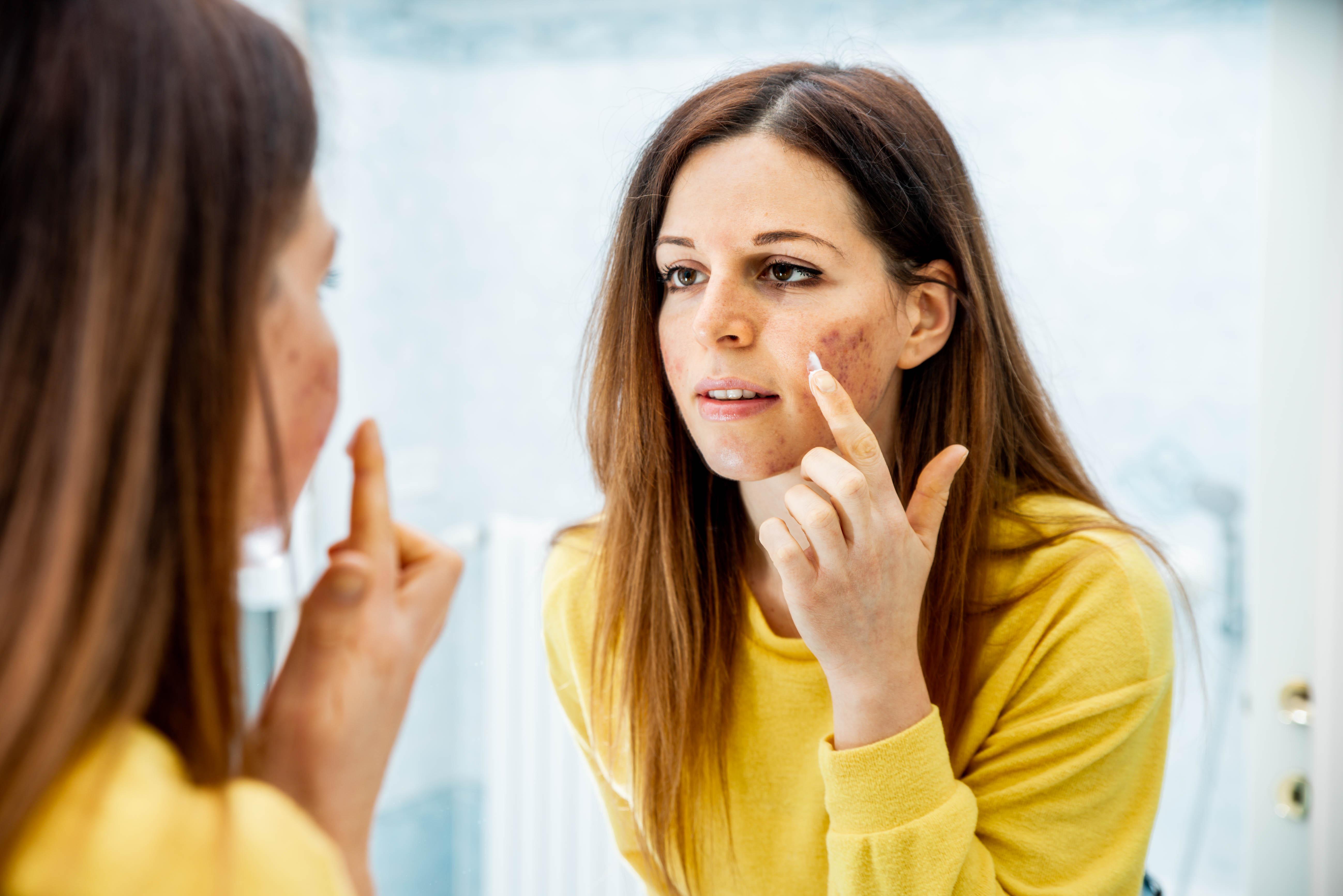 علاج التهاب الجلد