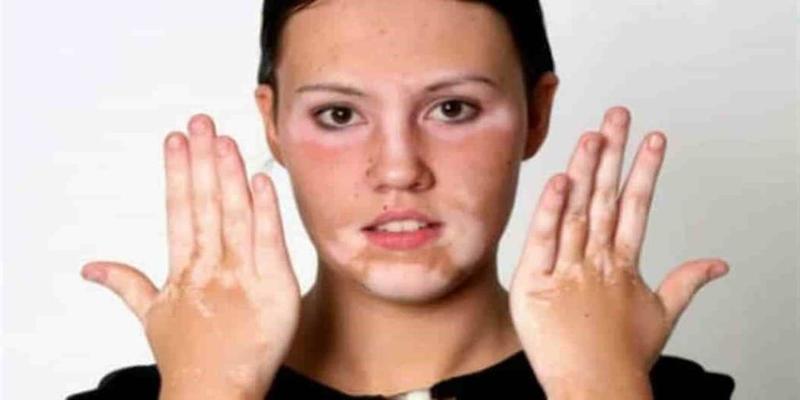 علاجات عديدة متوفرة لمرض البهاق