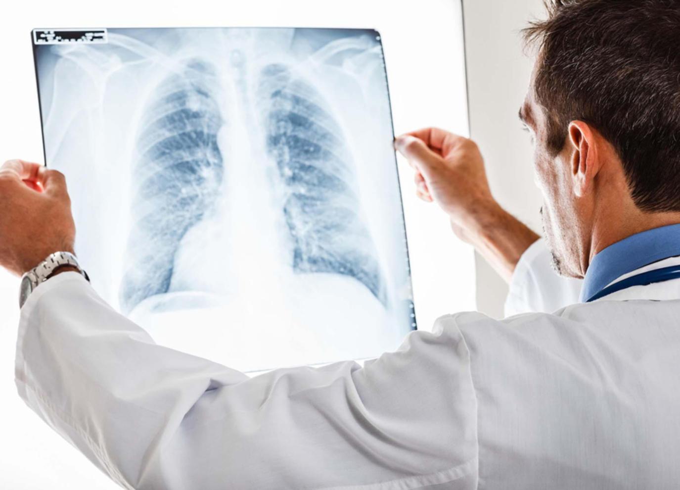 سرطان الرئة: فحص للدم يتنبأ بالإصابة قبل 5 سنوات من التشخيص | مجلة سيدتي